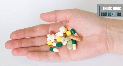 10 Cách chữa bệnh trĩ nội hiệu quả nhất điều trị trĩ nội nhanh chóng 4