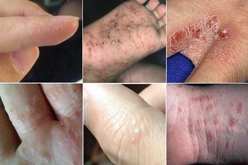 Tự nhiên nổi mẩn đỏ ngứa toàn thân là bệnh gì nguyên nhân cách trị 5