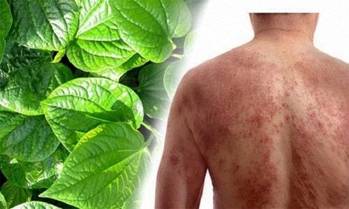 Tự nhiên nổi mẩn đỏ ngứa toàn thân là bệnh gì nguyên nhân cách trị 6