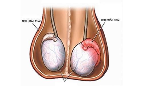 Nguyên nhân đau tinh hoàn trái và cách chữa trị