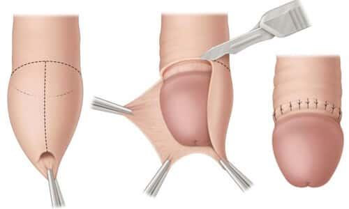 Cắt bao quy đầu là gì? Phẫu thuật cắt bao quy đầu
