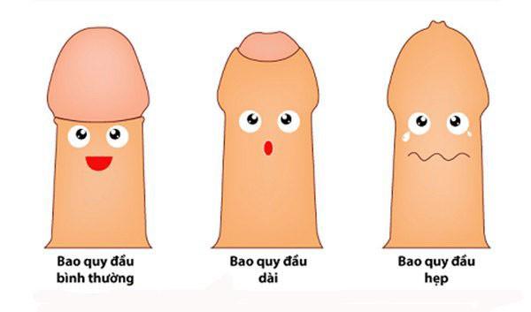 Tư vấn về cắt bao quy đầu online