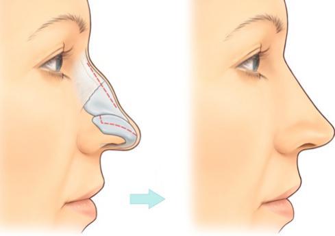 2 Phương pháp nâng mũi gồ cực An toàn và Rẻ cho dáng mũi Đẹp