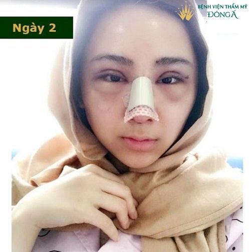 Dấu hiệu nhiễm trùng sau khi nâng mũi  & Cách Chữa Trị Hiệu Quả