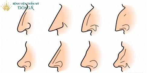 Các đặc điểm của tướng mũi phụ nữ | Hé lộ nhiều Địa chỉ xem tướng Uy Tín