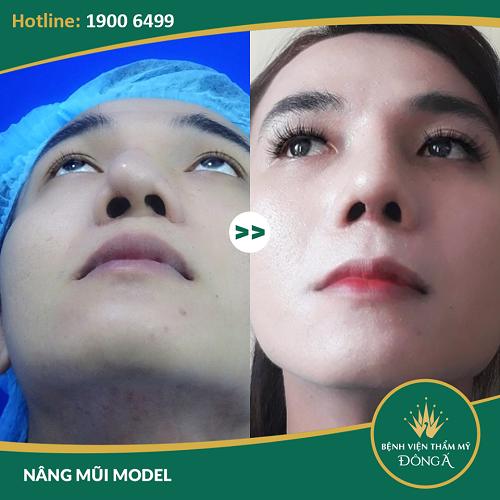 Diễn đàn rao vặt: Nâng mũi sụn sườn giá bao nhiêu? Bảng giá 2019 mới nhất + KHUYẾN MẠI 5d301bc1d7732431f91bb6b6_nang-mui-bang-sun-suon-gia-bao-nhieu