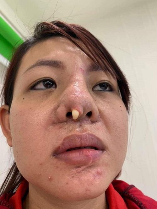 Diễn đàn rao vặt: Nâng mũi sụn sườn giá bao nhiêu? Bảng giá 2019 mới nhất + KHUYẾN MẠI 5d301bc236bd476675ec1b33_nang-mui-bang-sun-suon-bao-nhieu-1-1