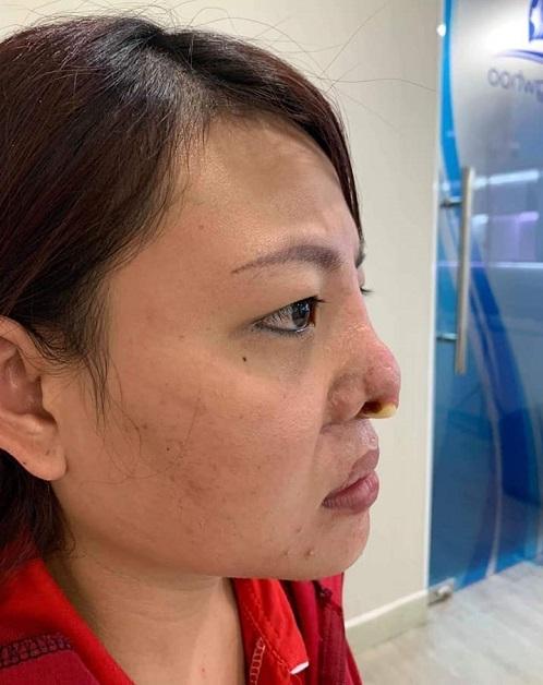 Diễn đàn rao vặt: Nâng mũi sụn sườn giá bao nhiêu? Bảng giá 2019 mới nhất + KHUYẾN MẠI 5d301bc2d7732464071bb6f4_nang-mui-bang-sun-suon-bao-nhieu-3