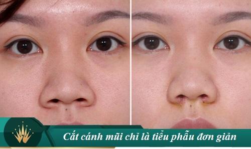 Cắt cánh mũi sau bao lâu thì lành? 5 Cách làm mũi hết sưng nhanh - Hình 2