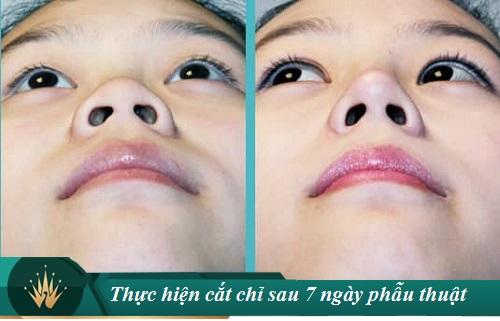 Cắt cánh mũi sau bao lâu thì lành? 5 Cách làm mũi hết sưng nhanh - Hình 3