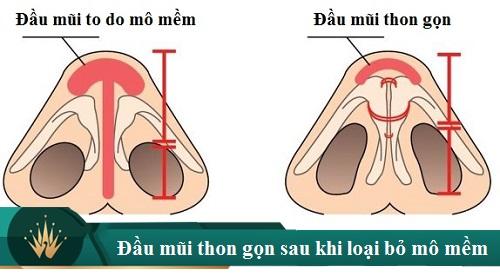 Cách thu gọn đầu mũi nội soi không phẫu thuật tại nhà là thế nào? Hình 2