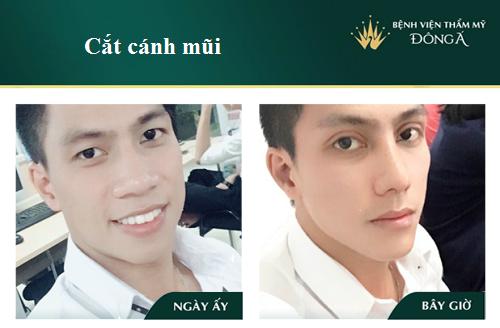 https://uploads-ssl.webflow.com/5d0da3708a906896b9000957/5d8d663230055eecbf8b2585_cat-canh-mui-nam-5.png