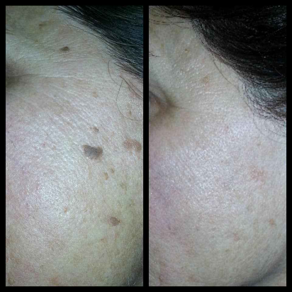 Skin Classic Before and After