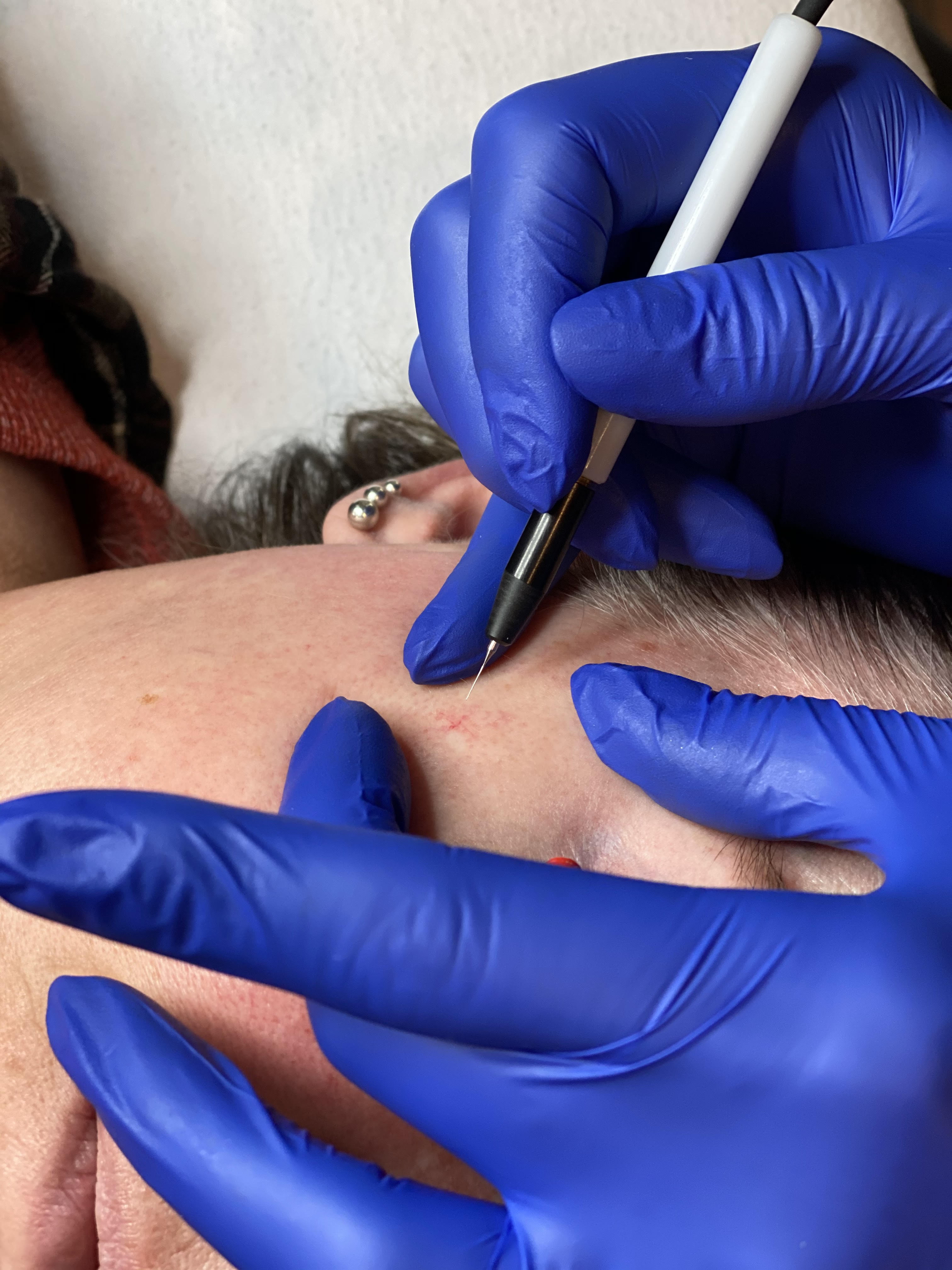 skin care specialist does work on a patient