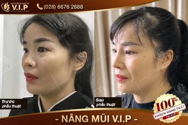 bảng giá nâng mũi Thái Lan