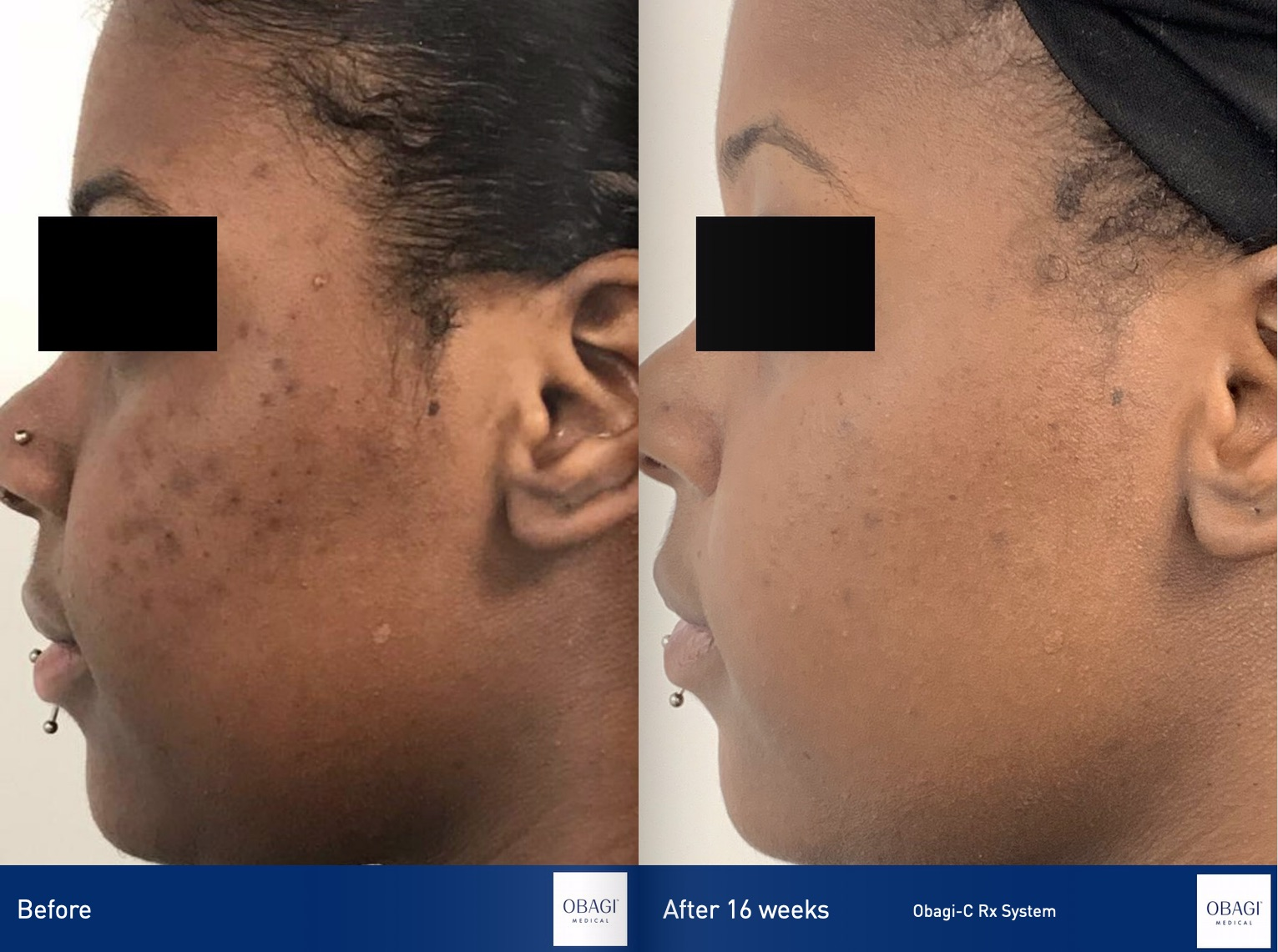 Obagi CRx system skin treatment reduced acne and improved skin tone.