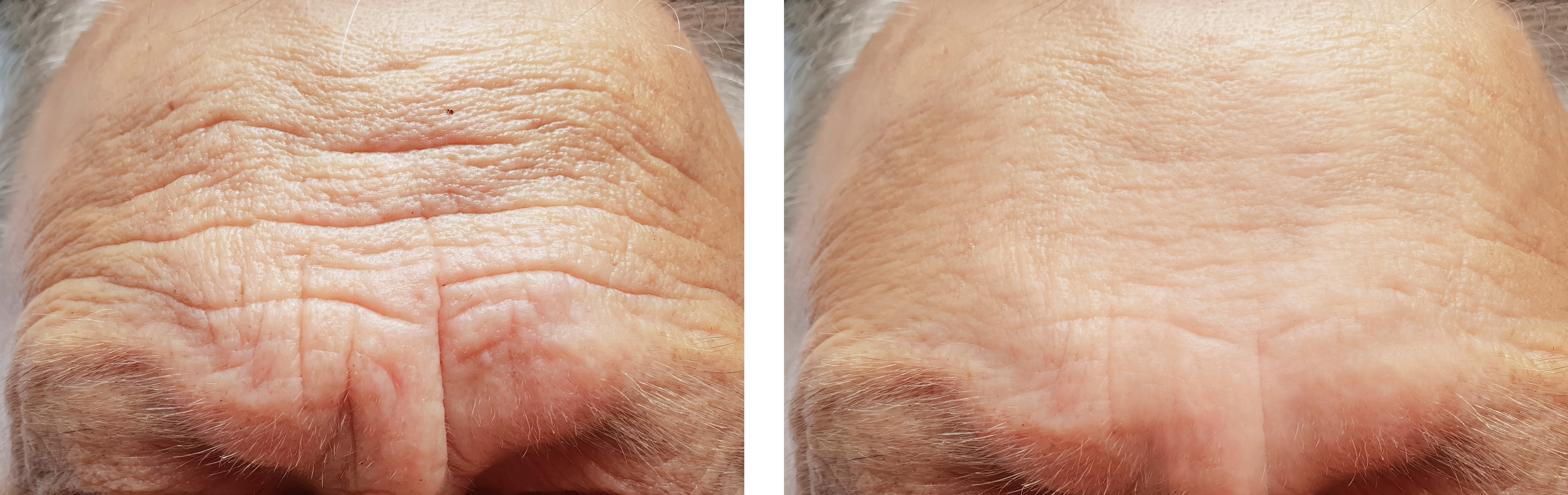 Before and after images showing the effects of Botulinum toxin (Botox) injections on smoothing deep wrinkles and creases in forehead region.