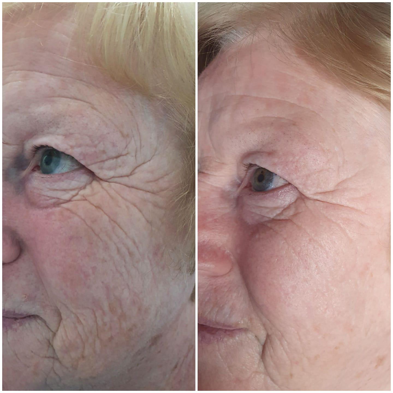 HIFU Face Plus £100 Free Skincare