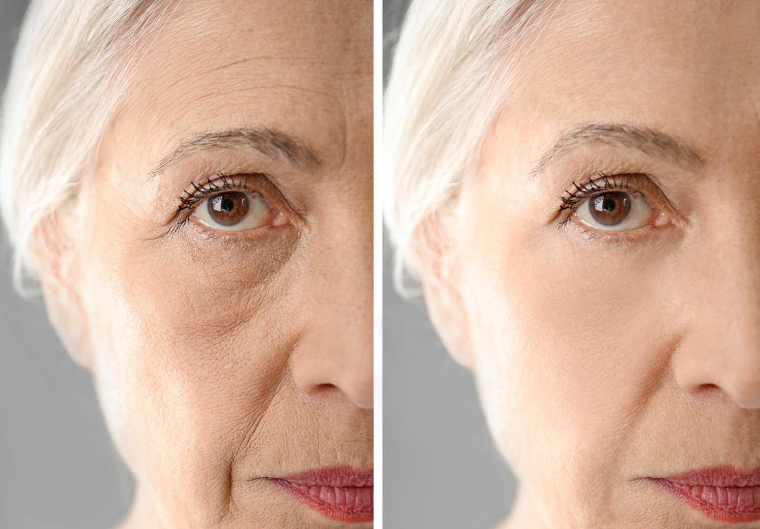 Wrinkle Smoothing Treatment
