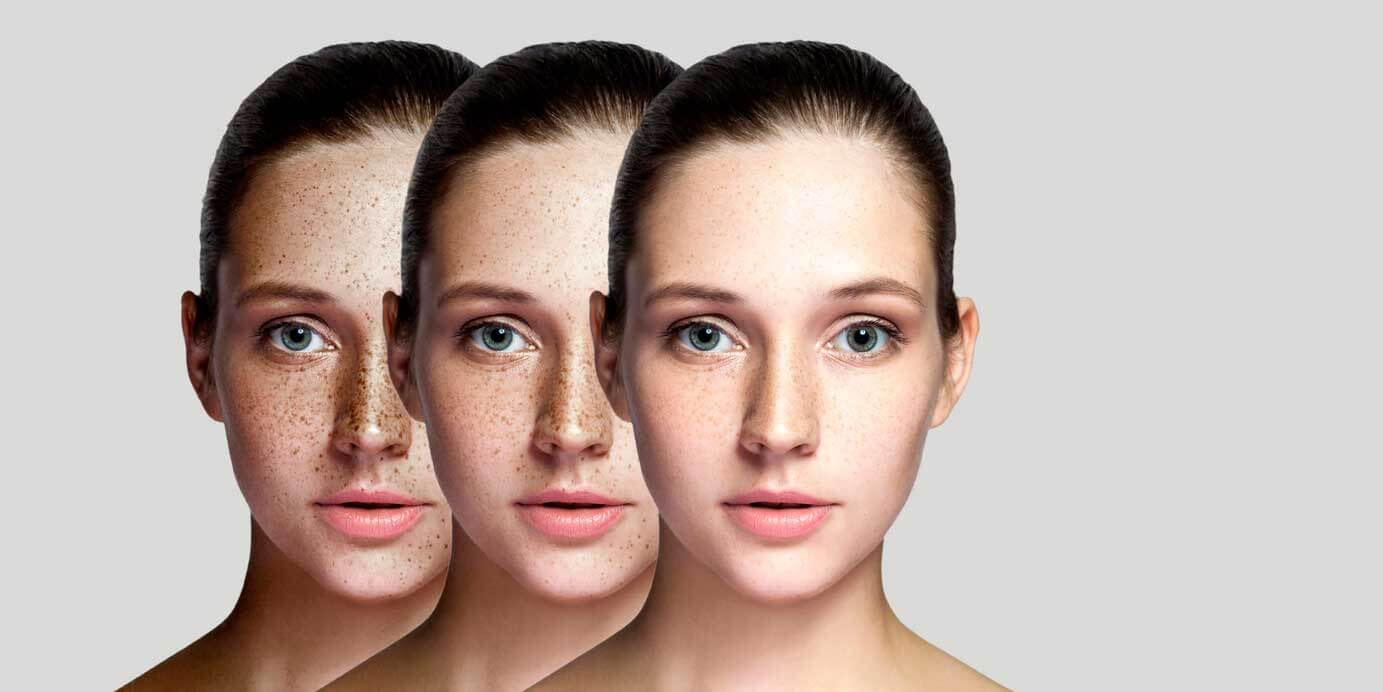 Pigmentation Therapy