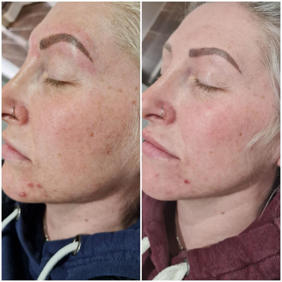 IPL Skin Rejuvenation 6 Package