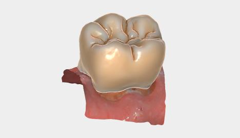 Anatomische Kronen