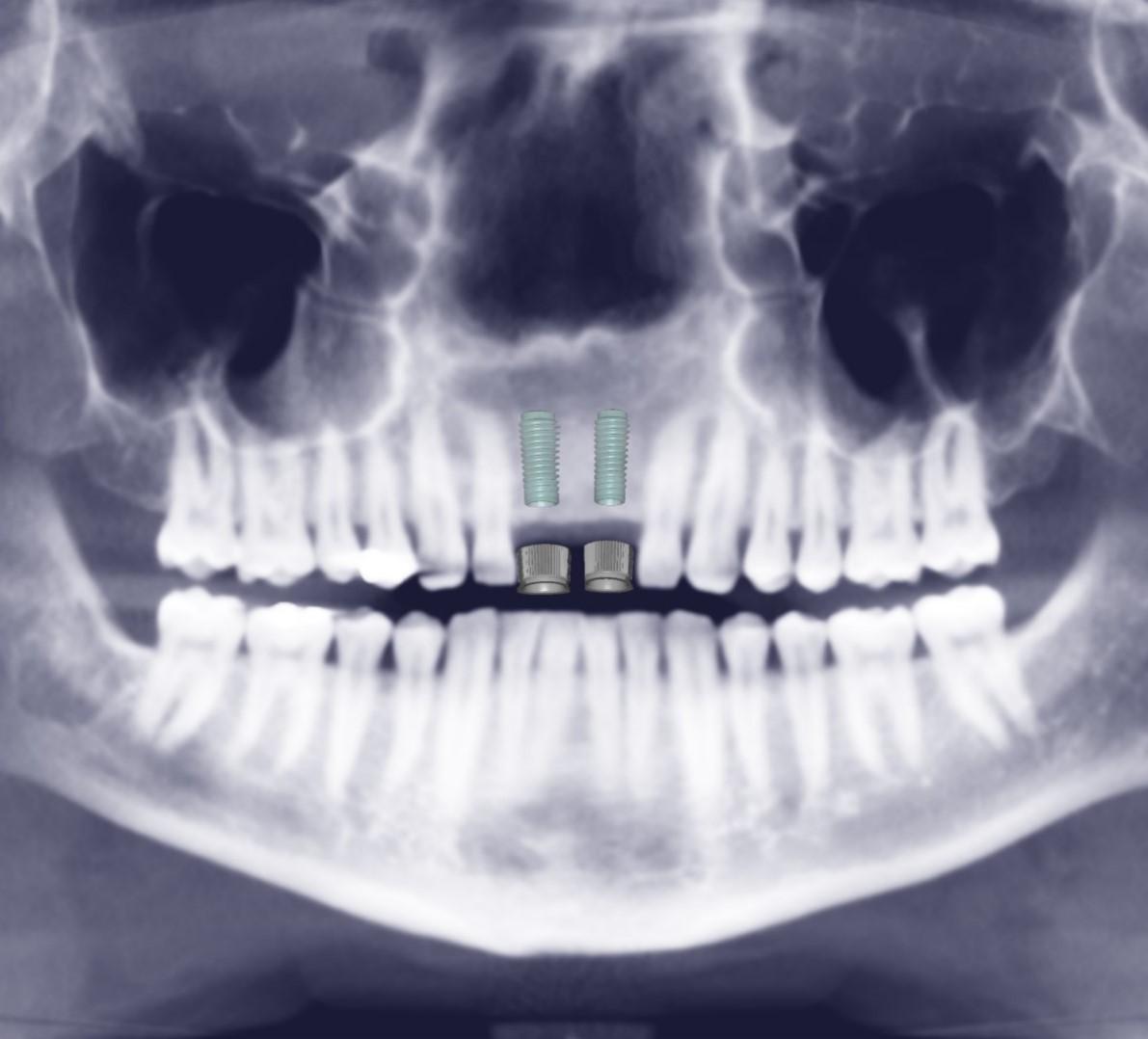 Planung von Implantaten mit exoplan
