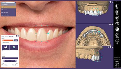 Die Zukunft der kosmetischen Zahnheilkunde