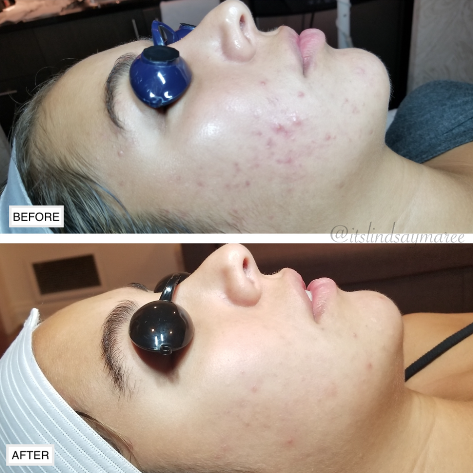 Before and after a series of facial treatments to clear this clients current breakouts and prevent future breakouts.