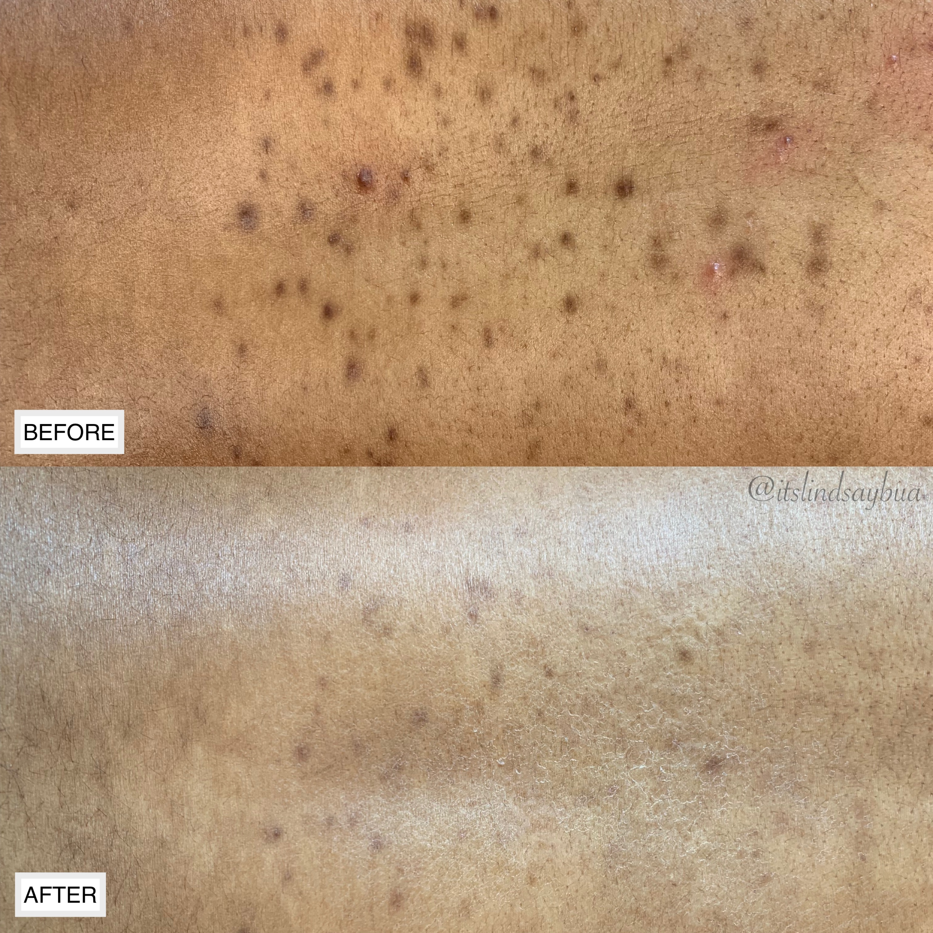 Before and after a series of back facial treatments to clear current breakouts + smooth and even the skin tone.