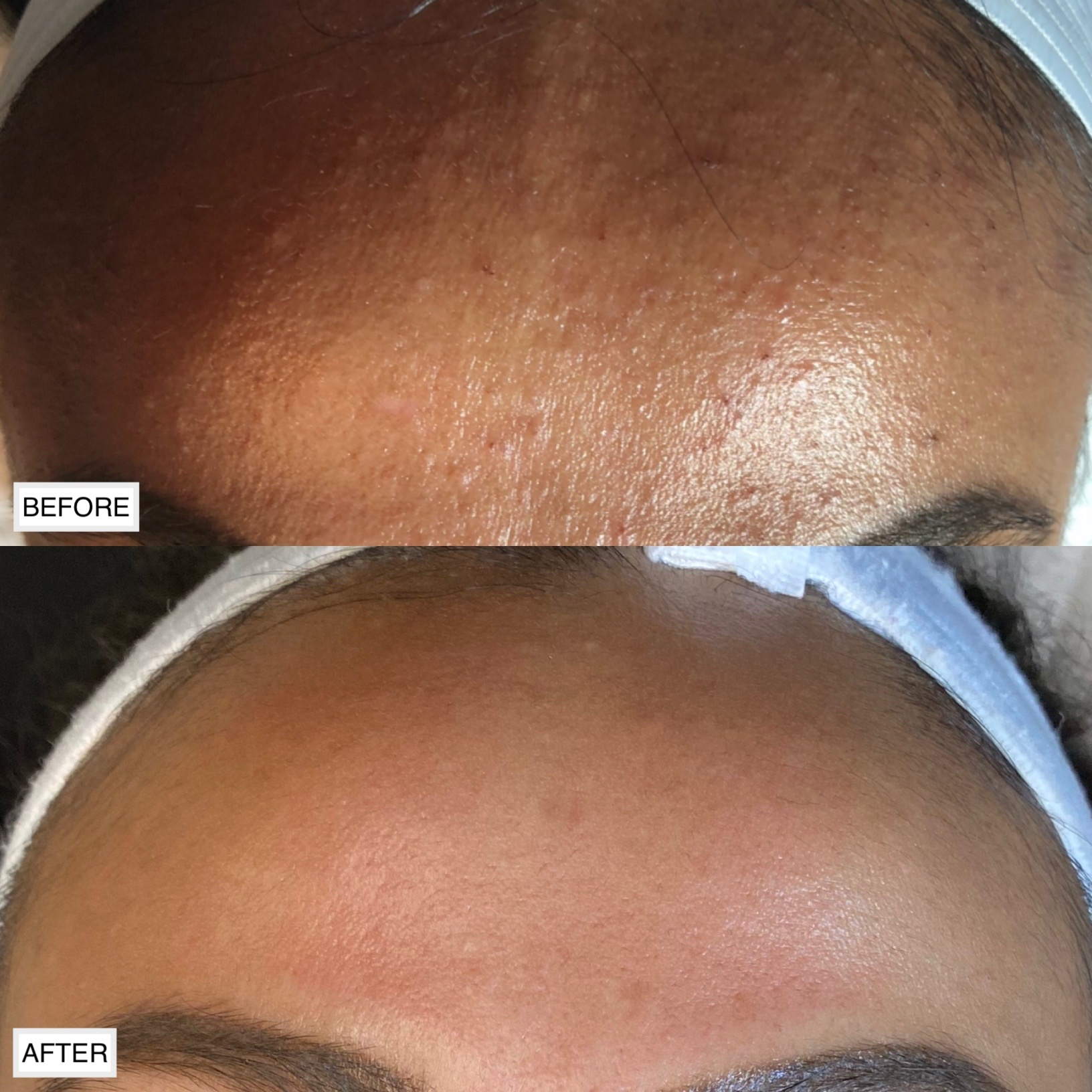 Before and after a series of facial treatments to clear this clients current congestion on the forehead and prevent future breakouts.