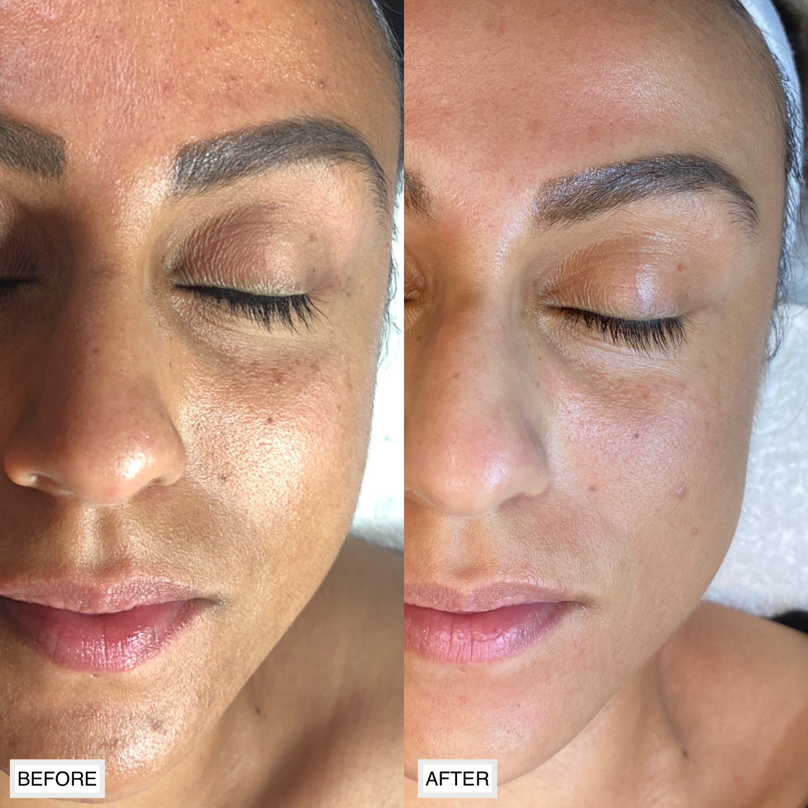 Before and after a series of facial treatments to soften this clients fine lines and wrinkles, plump the skin, and even the tone and texture of the skin.