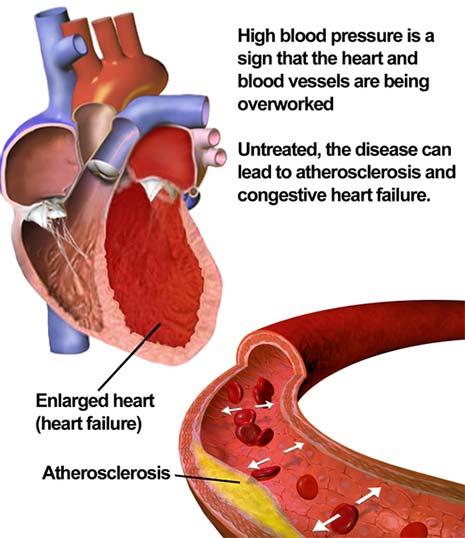 What is high blood pressure aka hypertension