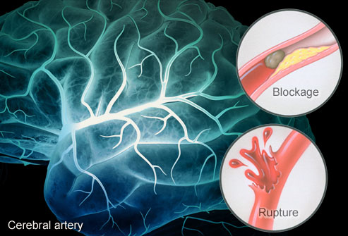 How a stroke occurs