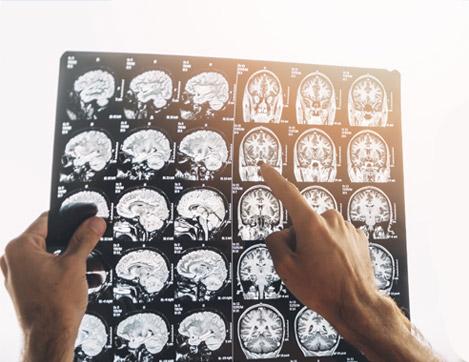 Un neurólogo estudiando una tomografía