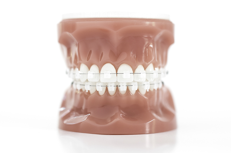 Clear Braces example from Blackburn Orthodontics, Independence best.
