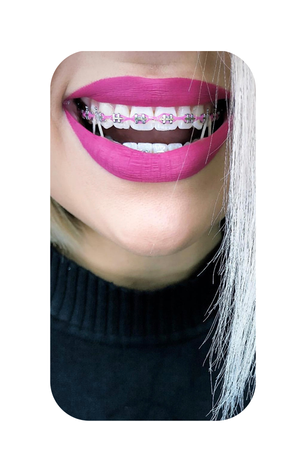 A happy smile with color braces.
