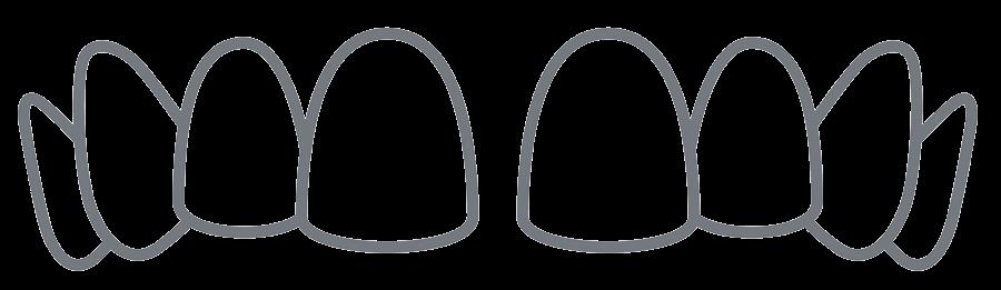Veneers - Lösung bei Zahnlücken.