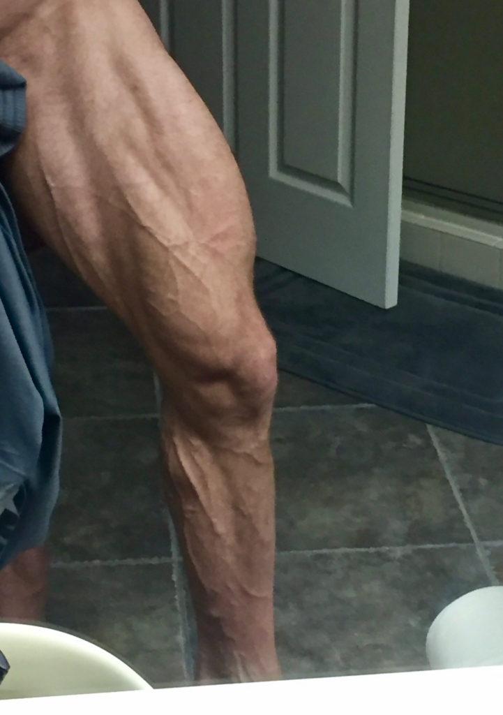 JimBrown's-Striated-Quad