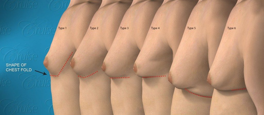 cruise-classification-6-types-gynecomastia