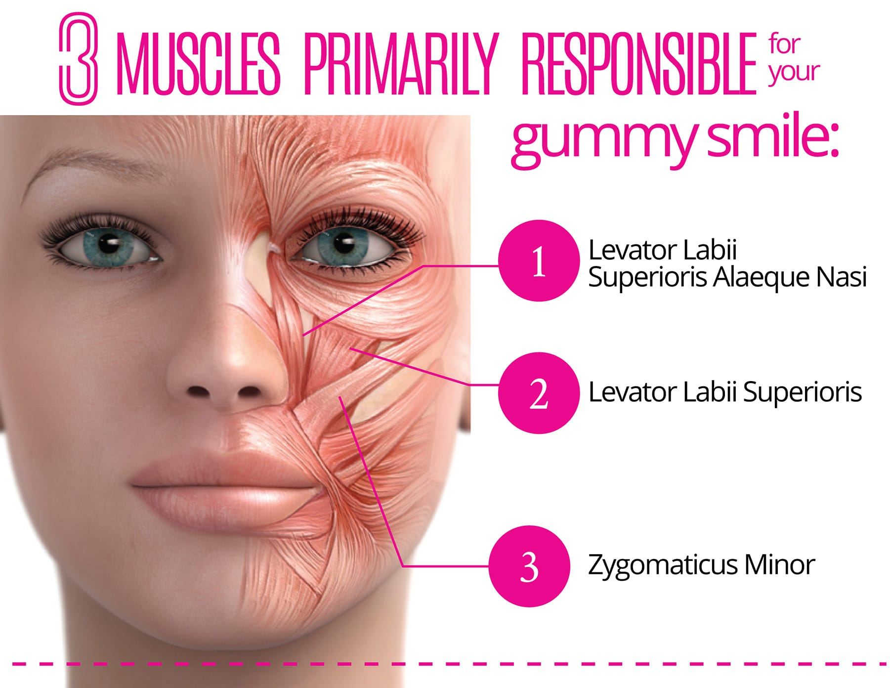 3 muscles primarily responsible for your gummy smile: 1- Levator Labii, 2- Levator Labii Superioris, 3- Zygomaticus Minor
