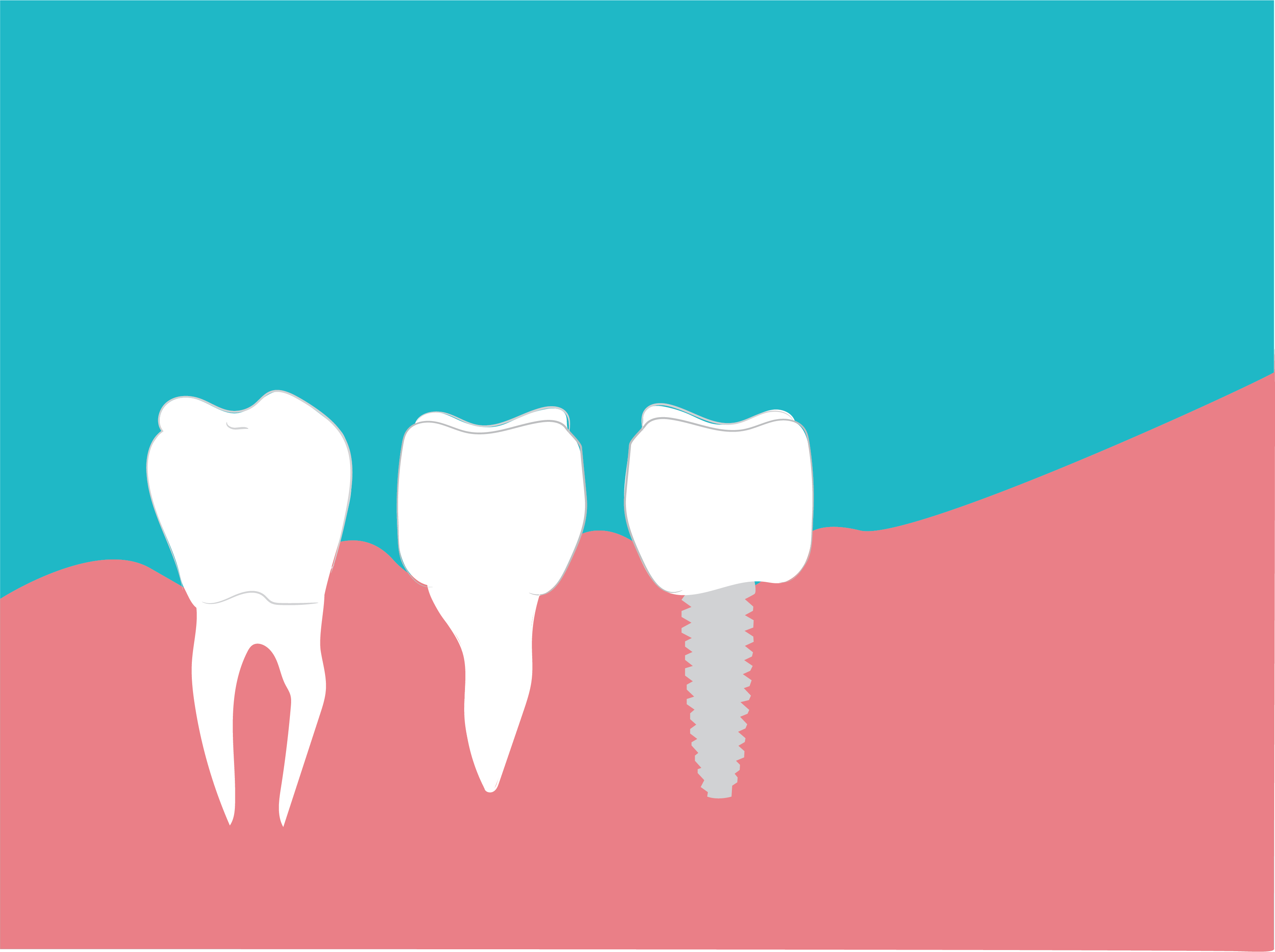 Graphic of a dental implant beside two natural molars