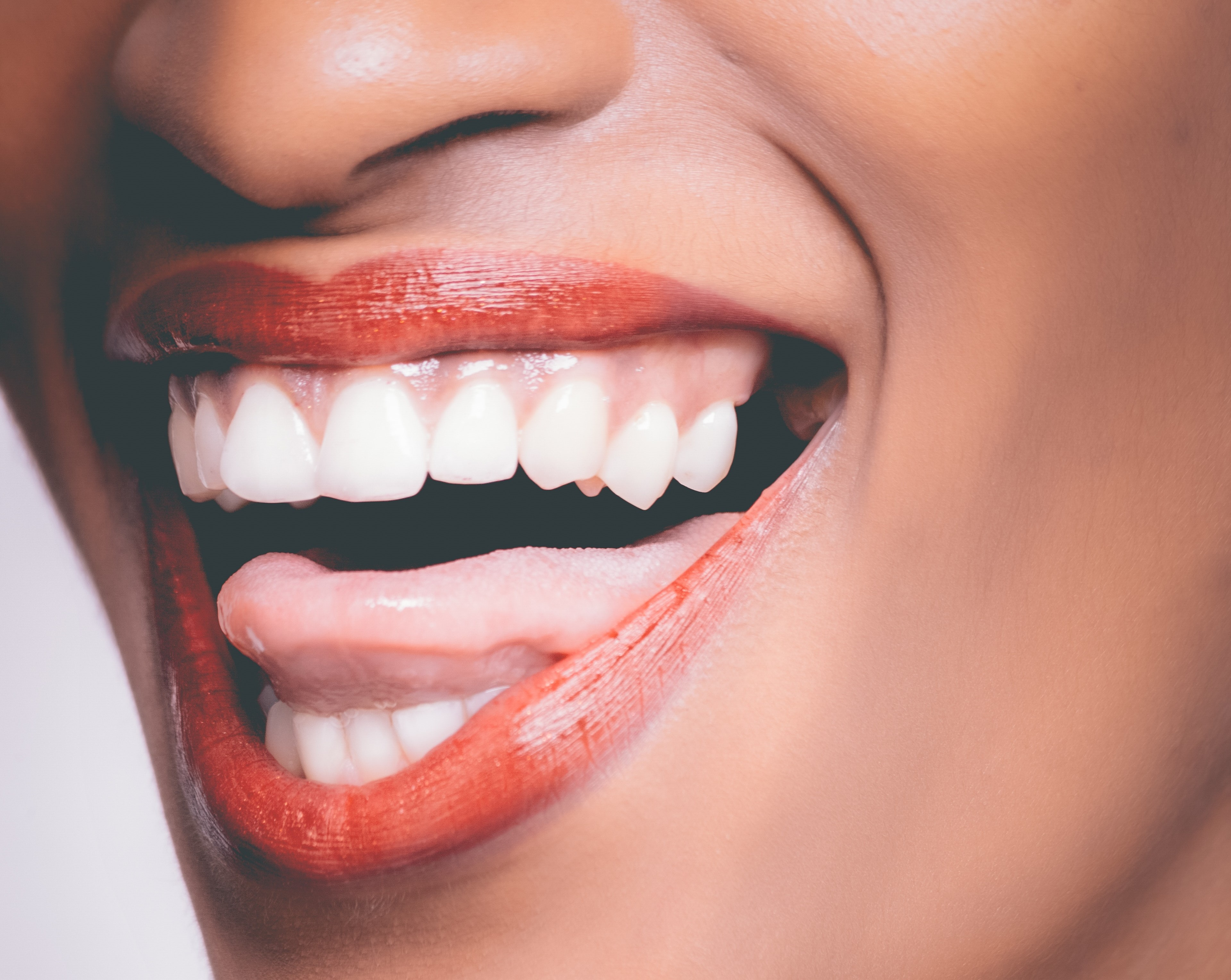 Woman's mouth, big open mouth smile