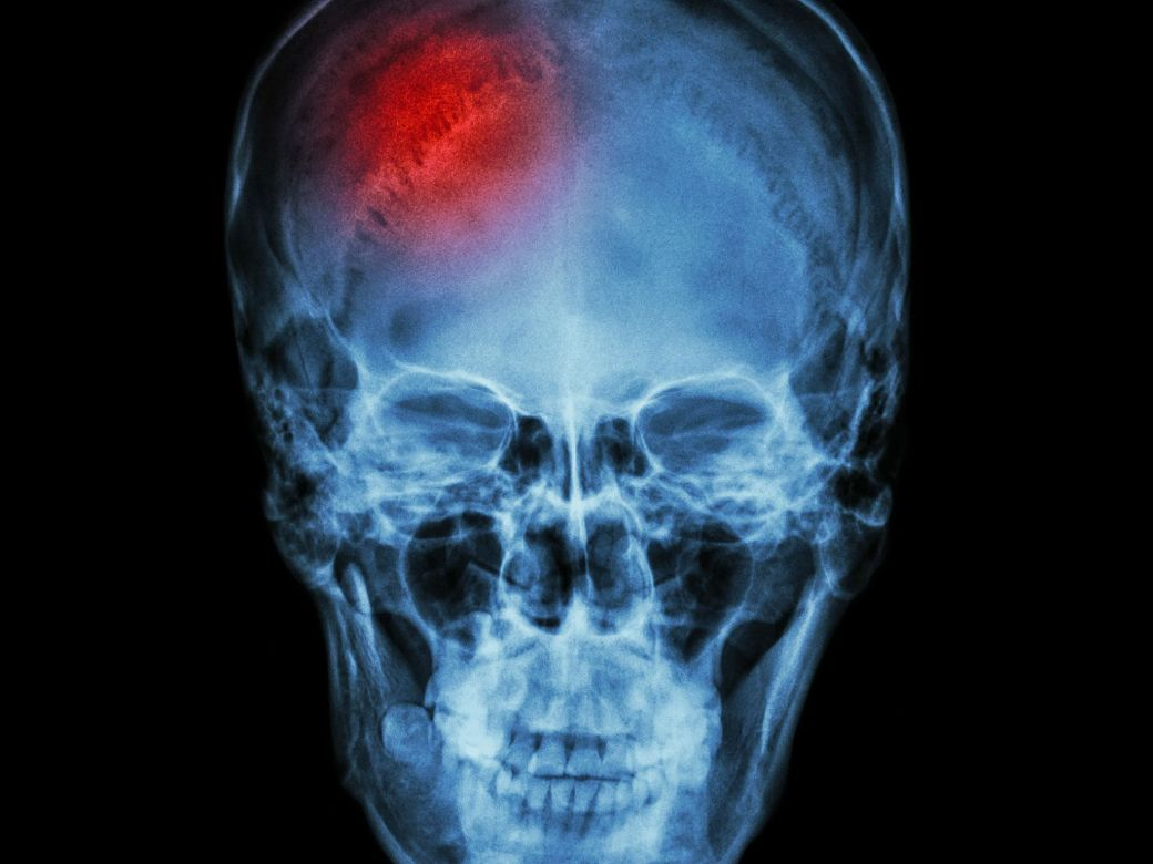 Can stem cell therapy help stroke victims?