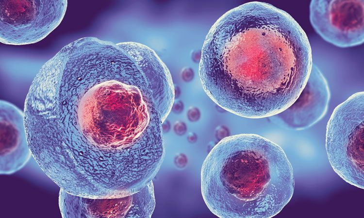 Stem Cell Therapy, A New Multiple Sclerosis Breakthrough in 2021?