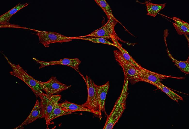 Types of Mesenchymal Stem Cells (MSCs) and their Mechanisms of Action