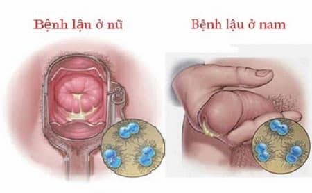 Biểu hiện của bệnh lậu ở nam và nữ