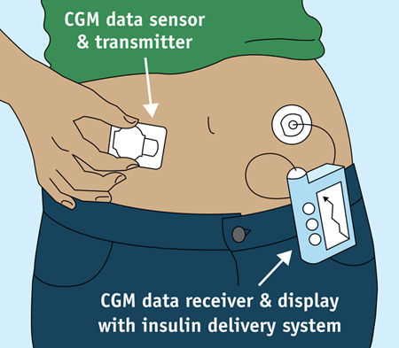 Wearable continuous glucose monitor and insulin pump