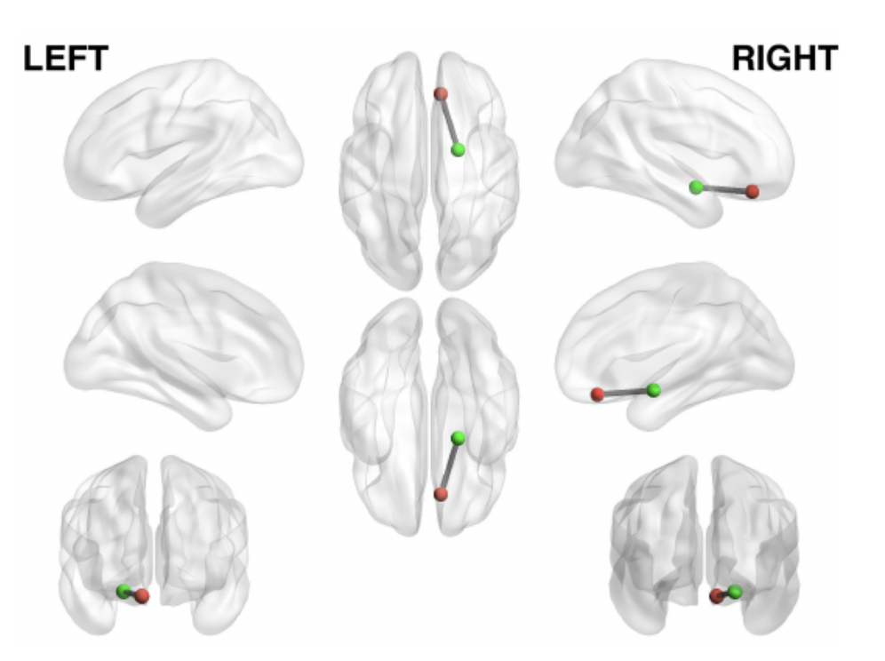A Study on Brain Connectivity and Mobile Sensing