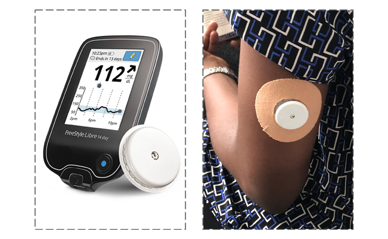 Wearing a continuous glucose monitor